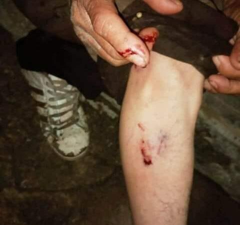 Tizimileño lo muerde un perro en la calle, le causa lesiones en la mano y pierna derecha